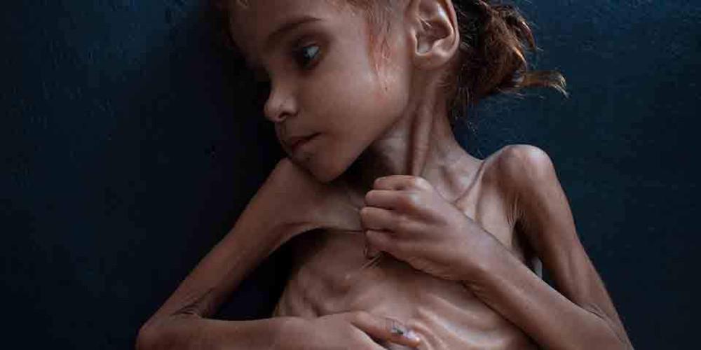 Τραγωδία: Πέθανε η 7χρονη Αμαλ – Το κορίτσι-σύμβολο του λιμού στην Υεμένη